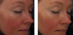 Protect Skin, Reduce Discomfort