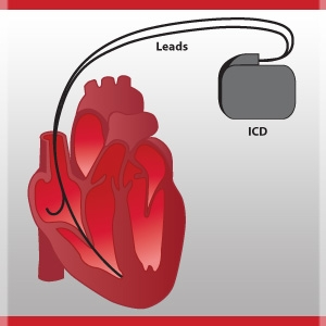 Study Finds Defibrillator Implants can be Hazardous to Your Health