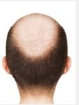DS Healthcare Opens Hair Loss Clinic