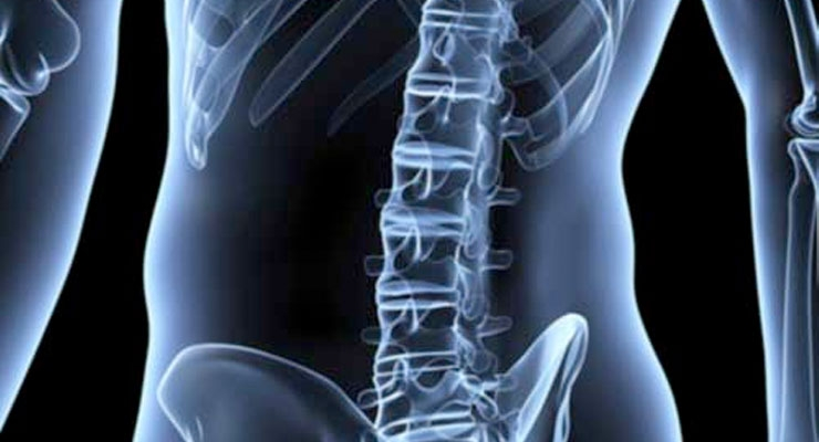 Spineology Awarded Patent for Spine Fusion System and Procedure