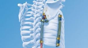 Pediatric Orthopedics: Little Fixes