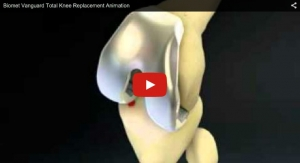 Biomet Vanguard Total Knee Replacement Animation