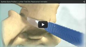 Synthes Spine ProDisc-L Lumbar Total Disc Replacement Animation