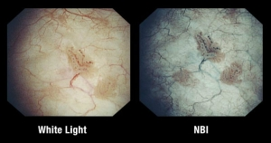 Olympus Narrow Band Imaging for Cystoscopy Cleared by FDA