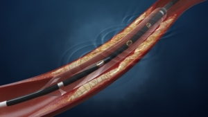 Shockwave Medical Receives CE Mark Approval for Lithoplasty System