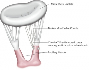 On-X Life Technologies Launces Mitral Valve Chordal Repair System